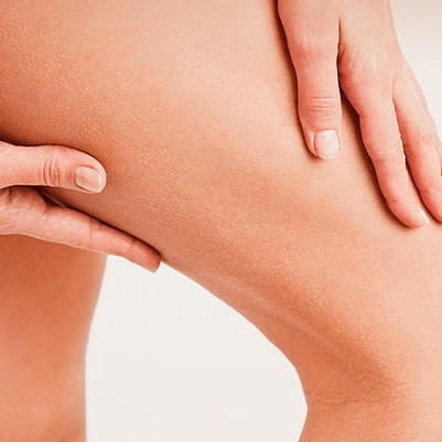 Treat Varicose Veins